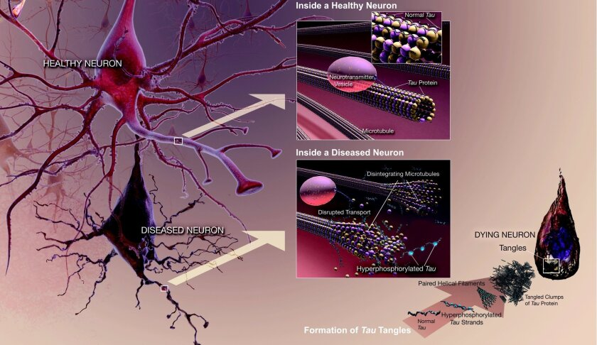 Tau tangles disrupt microtubules, used by neurons to communicate.