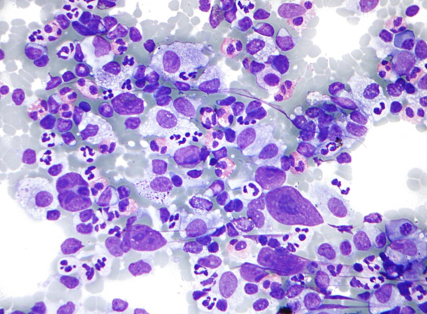 Hodgkin_lymphoma_cytology_large.jpg