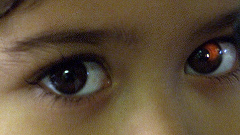 A child's eyes in the examination room.