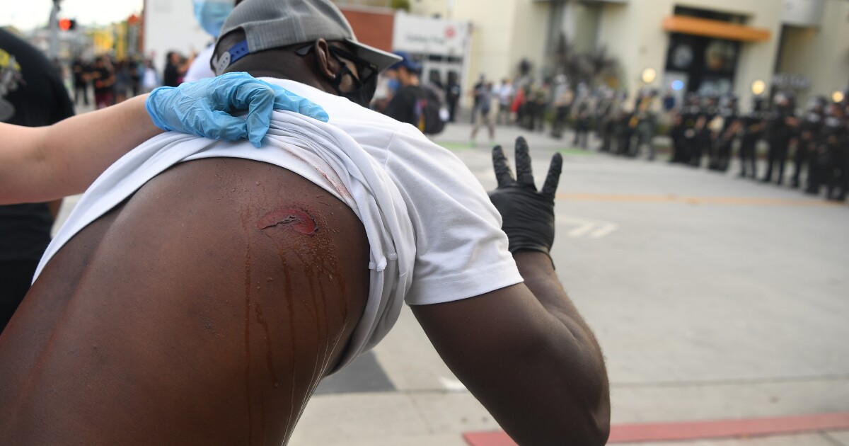 Rubber bullets can kill, main, blind people at protests