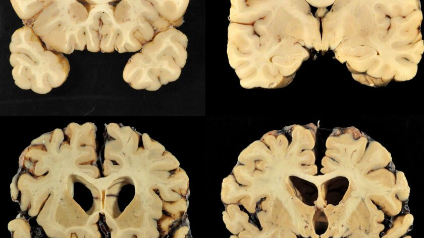 This combination of photos provided by Boston University shows sections from a normal brain, top, an