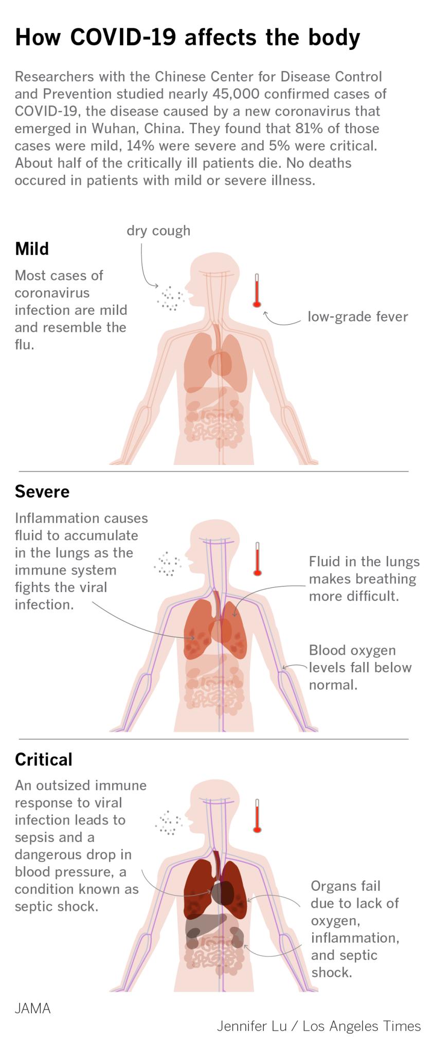 coronavirus-symptoms.png