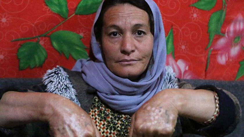 In this Thursday, Feb. 28, 2019 photo, Baseh Hammo, a Yazidi woman who escaped enslavement by Islami