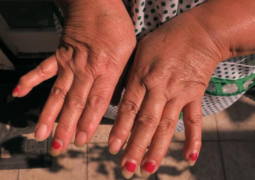 Una mujer muestra su manos con artritis reumatoide hoy, viernes 19 de enero de 2018, en Ciudad de México (México). El clima frío influye en el aumento de la sensación del dolor en personas que sufren enfermedades reumáticas inflamatorias crónicas, por lo que es fundamental evitar exponerse a las bajas temperaturas y abrigarse adecuadamente, dijo hoy la reumatóloga Aida Galicia López durante una entrevista con Efe. EFE