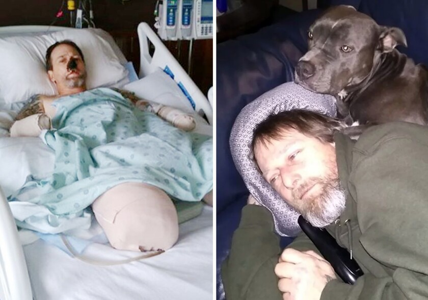 Greg Manteufel of Wisconsin lost his hands and legs after he contracted a life-threatening bacterial infection from a dog. He's pictured at right with his pitbull, one of eight pooches he was around when he contracted the bacteria.