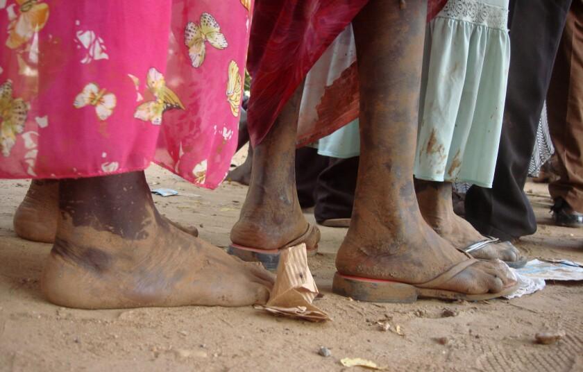 En esta imagen tomada el jueves 14 de julio de 2016 y proporcionada por la misión de Naciones Unidas en Sudán del Sur, varias personas esperan en una fila en el campo de la ONU en Yuba, la capital de Sudán del Sur. Algunos ciudadanos del país, incluso aquellos con doble ciudadanía sursudanesa-estadounidense, fueron rechazados en la frontera cuando intentaron abandonar el país. (Beatrice Mategwa/UNMISS via AP)