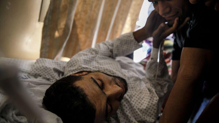 Baha Abu Ayash returns from his amputation surgery at Shifa Hospital in Gaza City, Gaza Strip, in late May.