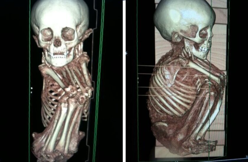 CT scans of one of the San Diego Museum of Man's Peruvian mummies.