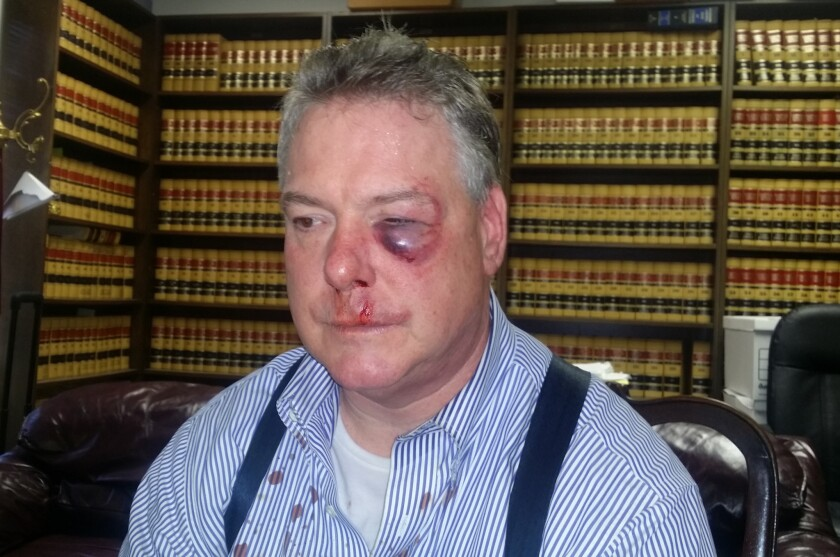 Defense attorney James Crawford after the courthouse brawl.