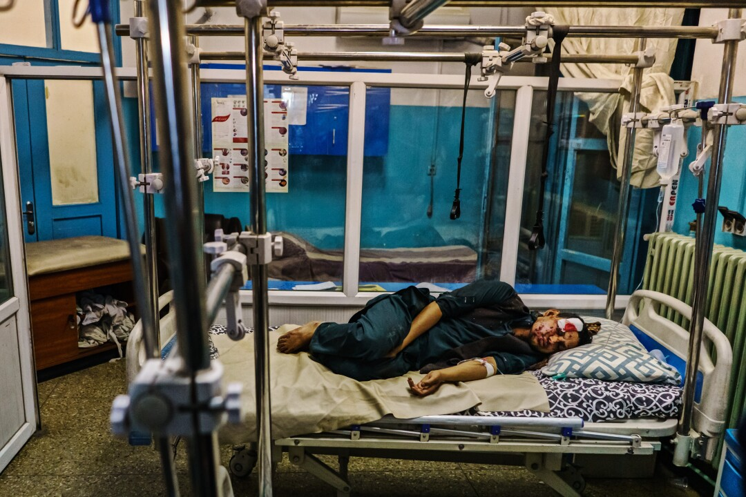 A wounded patient lays in the recovery unit at Wazir Akbar Khan Hospital. in Kabul, Afghanistan.