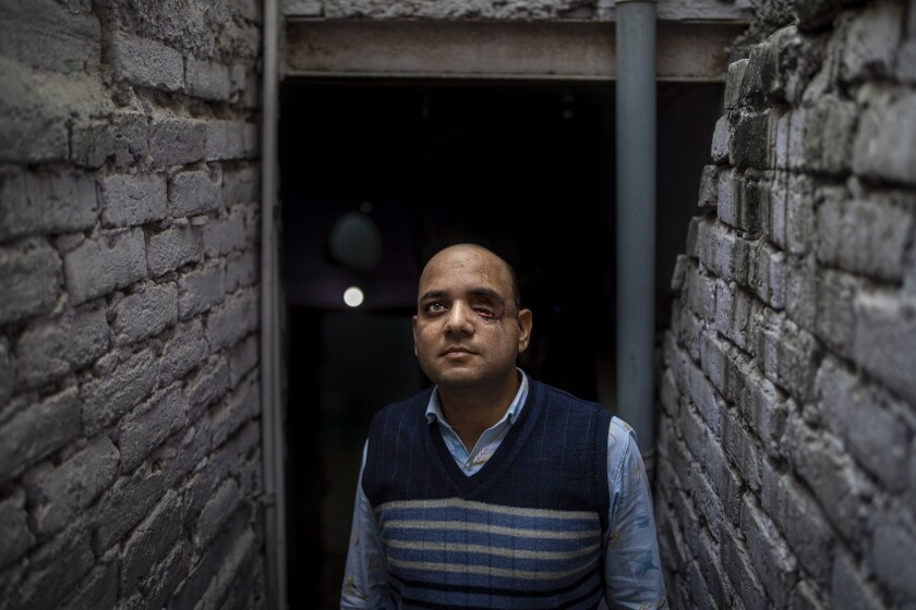 A man with one eye missing poses for a portrait in a stairwell at his home