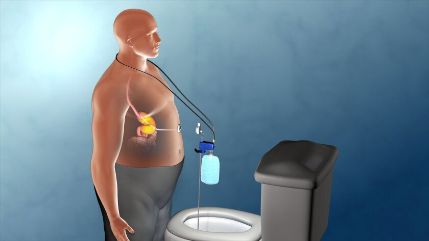 The AspireAssist System diverts some of a person's meal from the stomach and eventually into the toilet through a valve system.