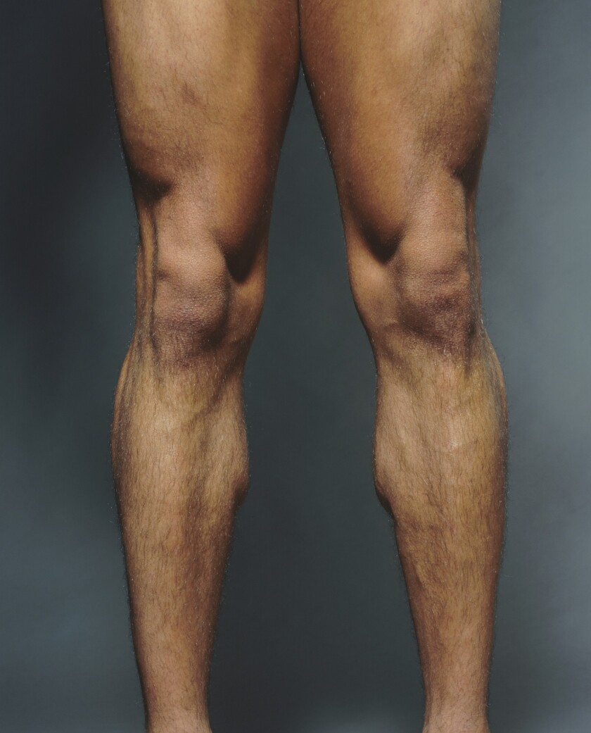 Glucosamine: No cure for knee pain or deterioration, study says