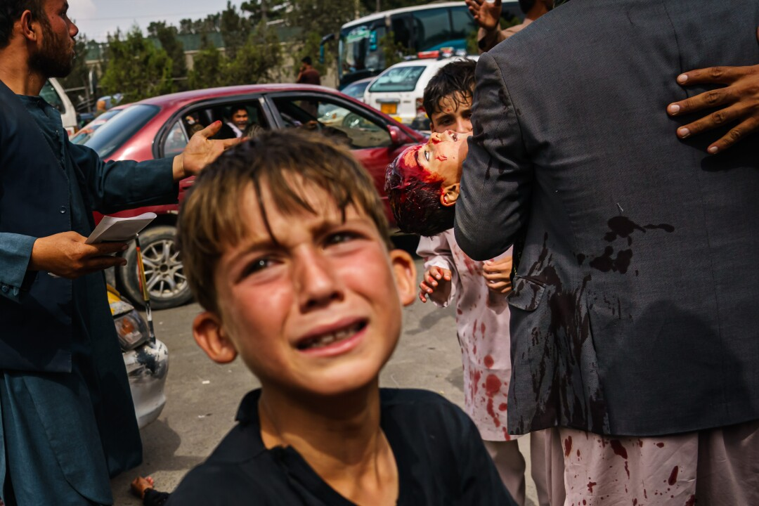 A child cries as man carries a bloodied child in the street