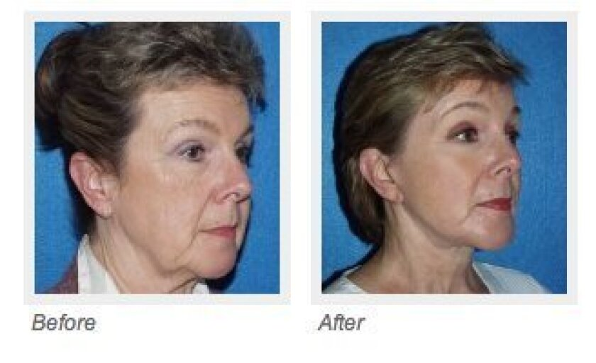 The mid facelift uses subtle incisions to lift and tone the face.