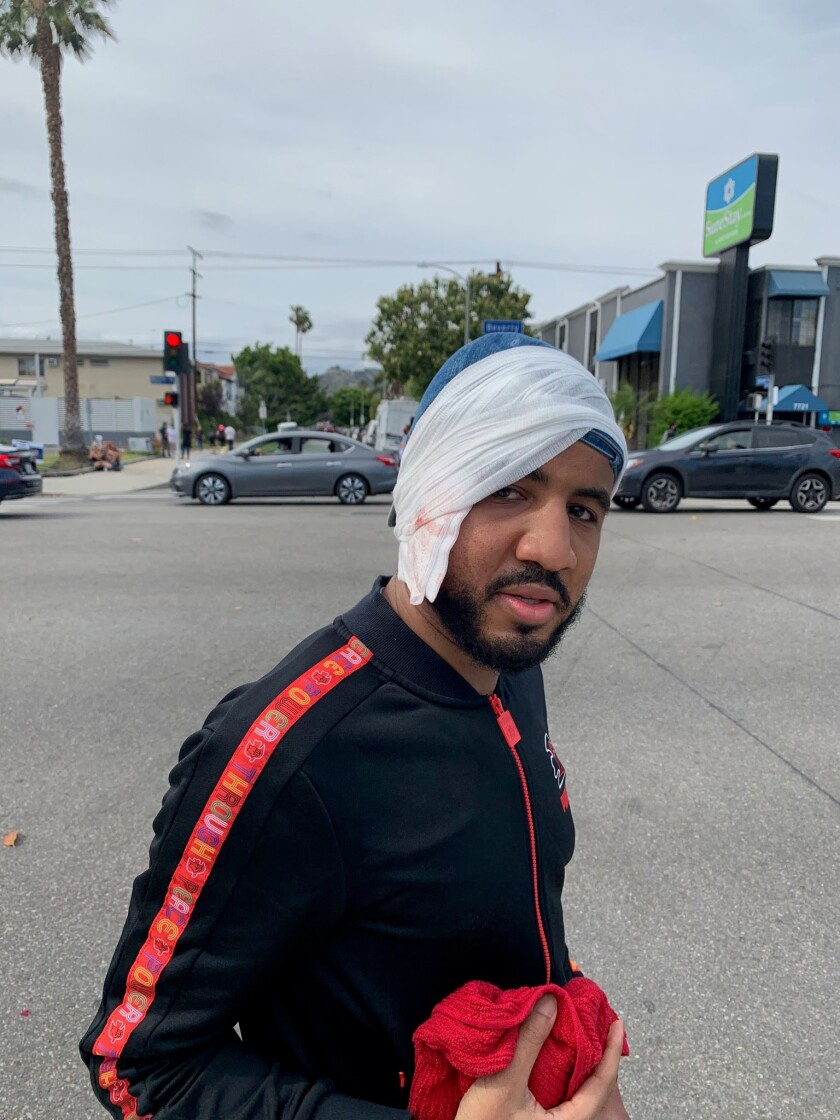 A man stands in a street with his head wrapped in a cloth that appears to be stained with blood