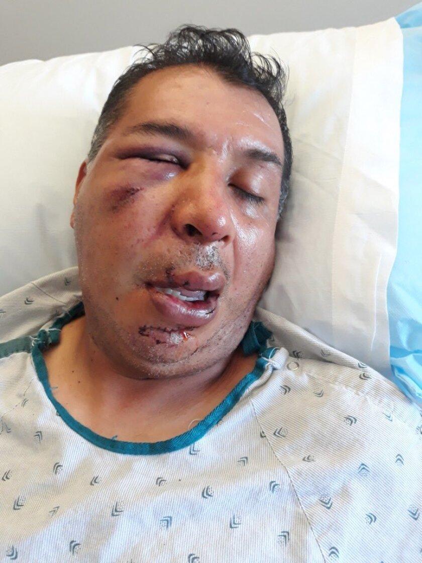 El vendedor, identificado como Oswaldo Sánchez, quedó inconsciente como resultado del golpe.