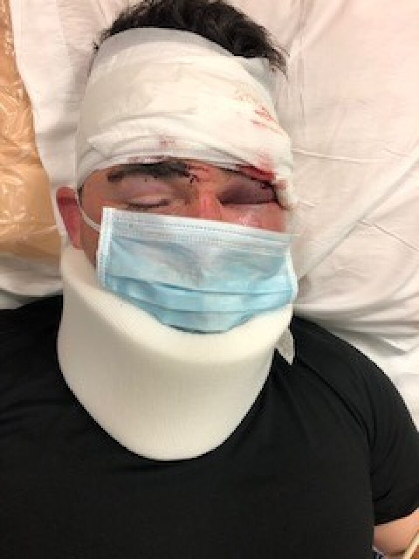 Deputy Michael Cascioppo was recovering after being attacked by two inmates at the Vista jail on Saturday.