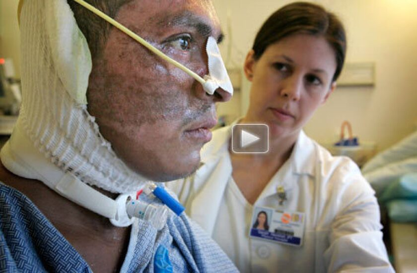 Physical therapist Sarah Hershel works with Harris fire victim Nicolas Beltran in the burn center at UC San Diego Medical Center. He had recently awakened from a two-month induced coma while surgeons repaired third-degree burns over 40% of his body. Watch video >>>