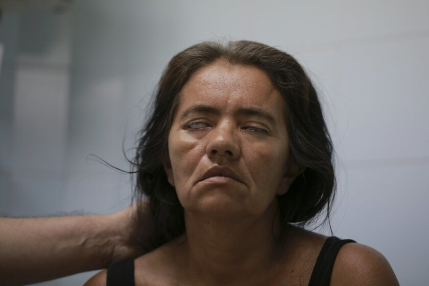 In this Feb. 11, 2016 photo, Zulay Balza fails to close her eyes as neurologist Jairo Lizarazo tests her facial muscles at the Erasmo Meoz Hospital in Cucuta, Norte de Santander state, Colombia. Balza was diagnosed with Guillain-Barre Syndrome, a disorder in which the immune system attacks the nerv