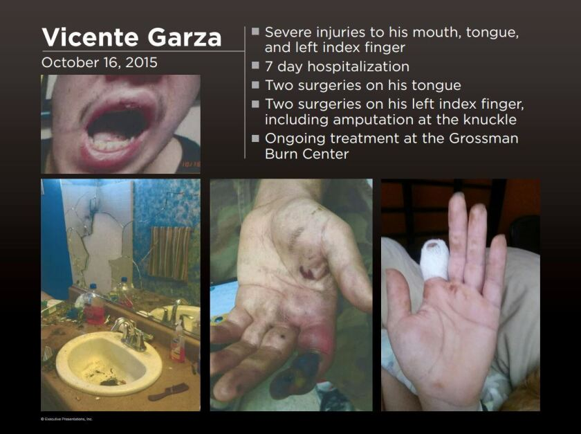 An image provided by Shernoff Bidart Echeverria Bentley LLP shows Vicente Garza's injuries after an electronic cigarette exploded near his face.