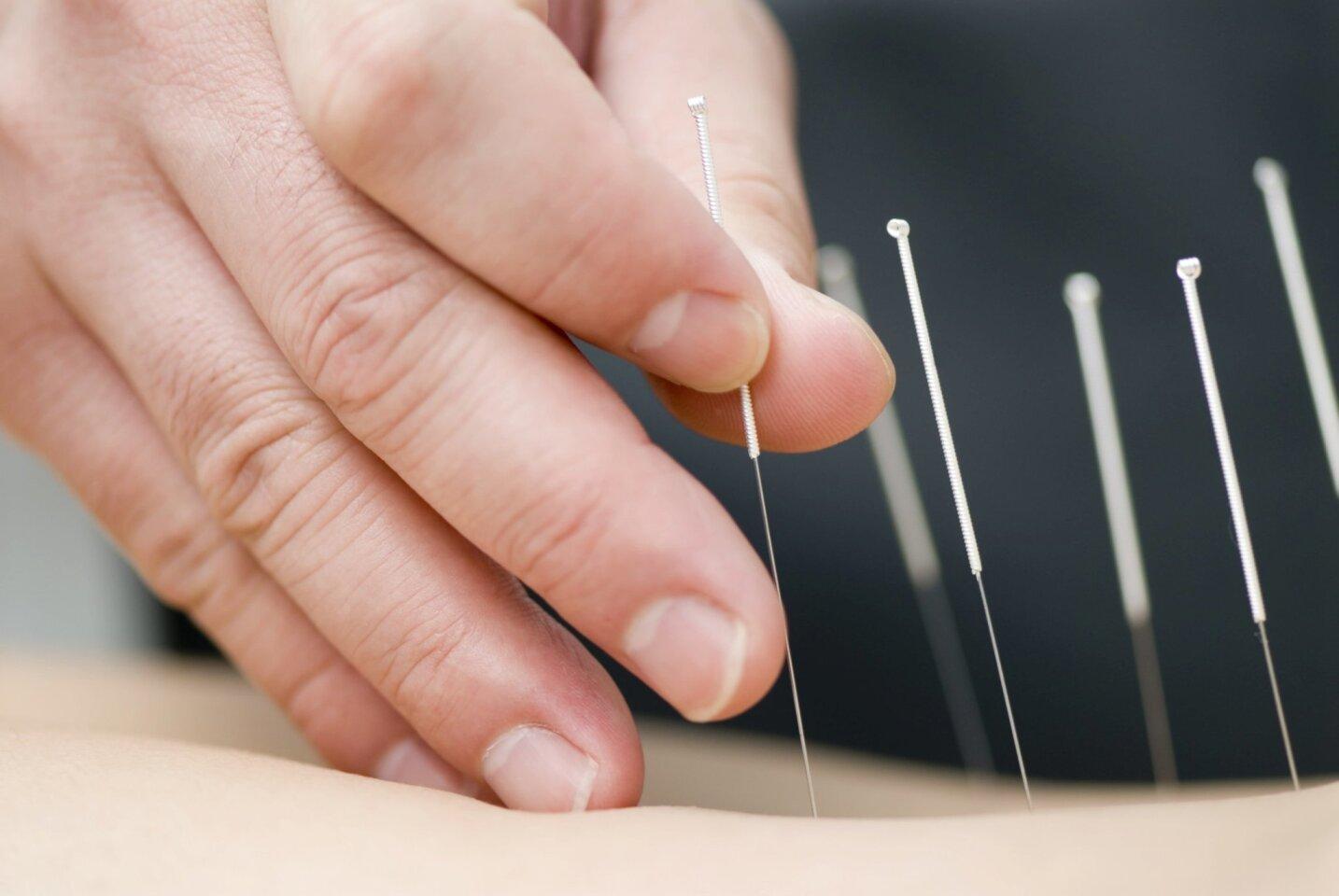 sdut-accupuncture-20160907