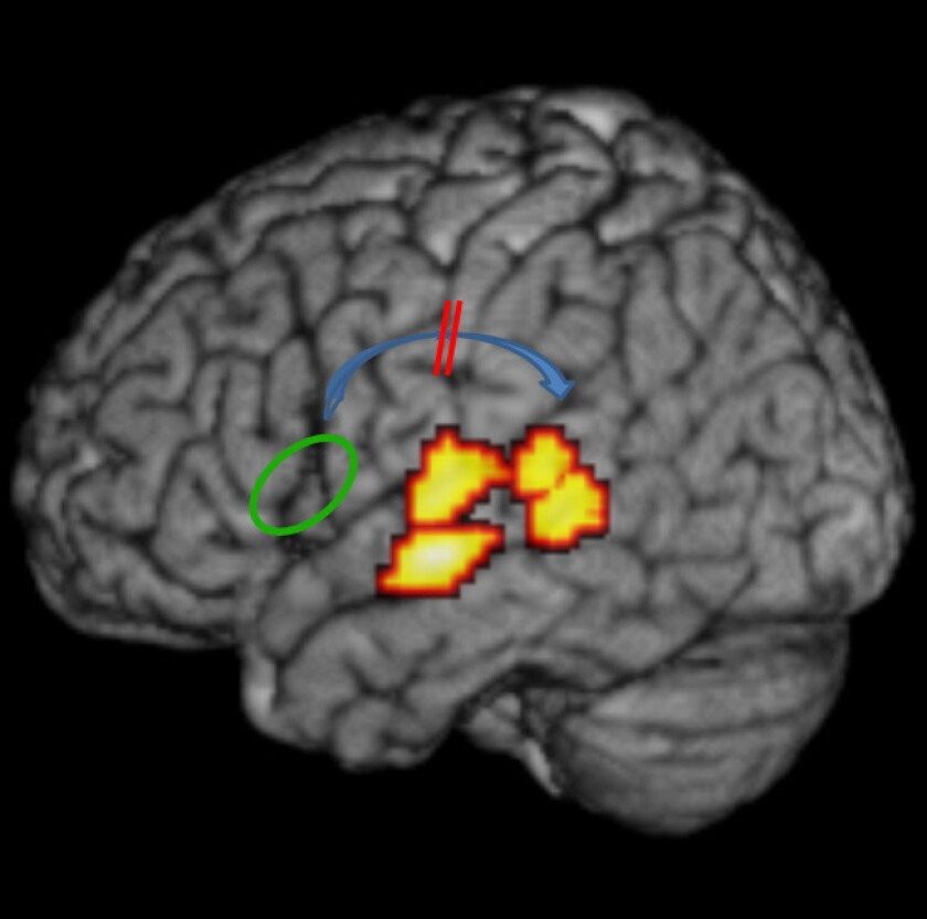 A white-matter circuit may be to blame for dyslexia, a study found