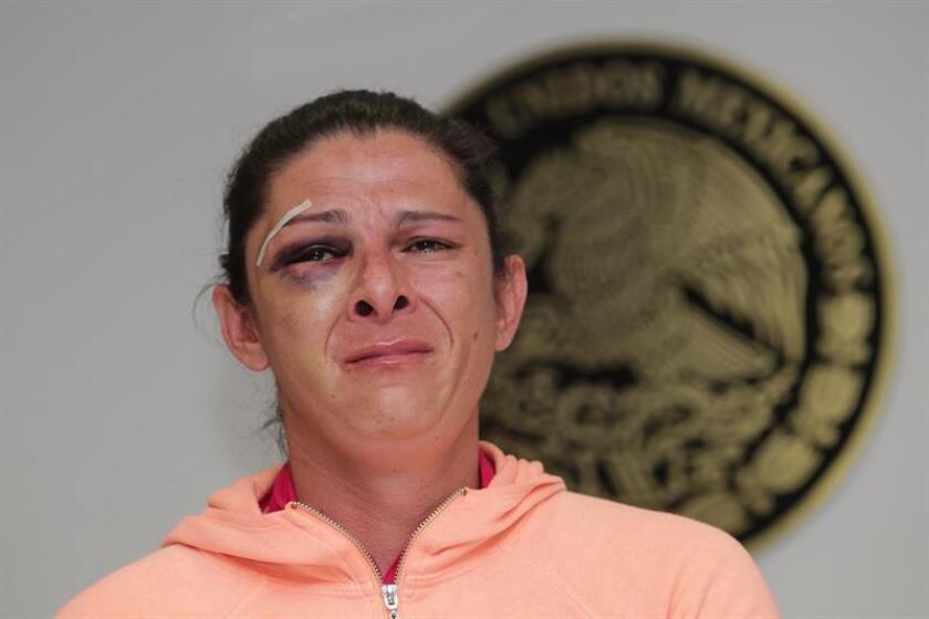La medallista olímpica Paola Espinosa afirmó hoy que la agresión a la senadora mexicana Ana Gabriela Guevara refleja la violencia del país y la incomodidad por ver a una mujer fuerte y exitosa. EFE