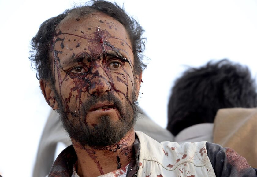 A wounded man walks at the site of an attack involving truck bombs in Afghanistan's Ghazni province on Sept. 4.