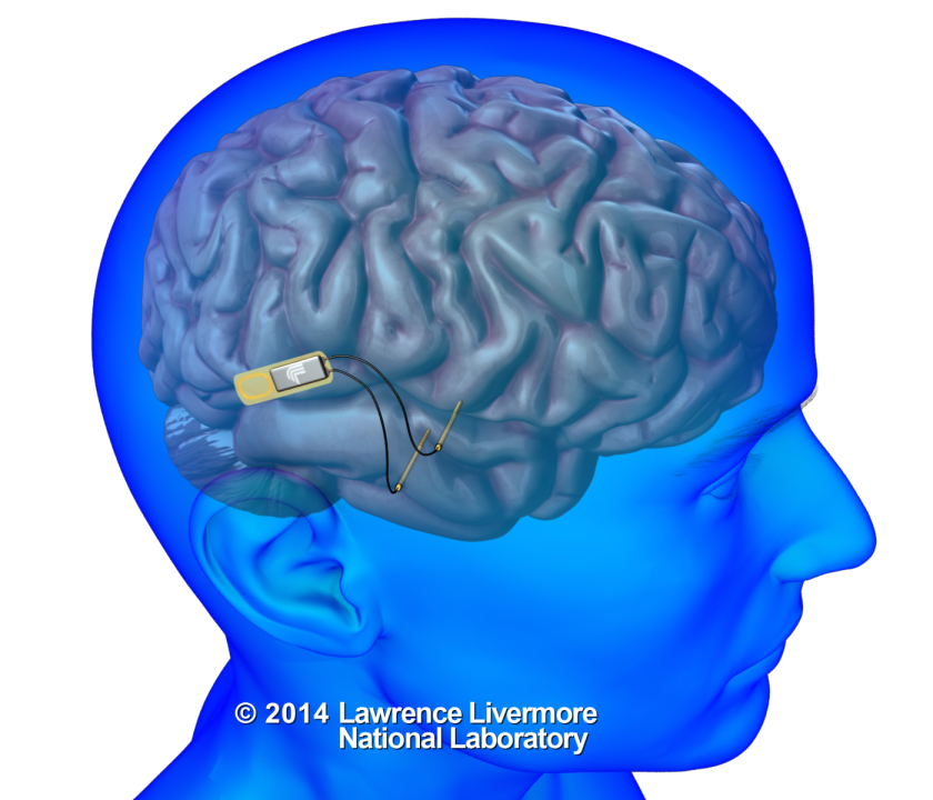 This drawing depicts an implantable neural device that could record and stimulate neurons within the brain to help restore memory. The Defense Advanced Research Projects Agency is funding development of the device.