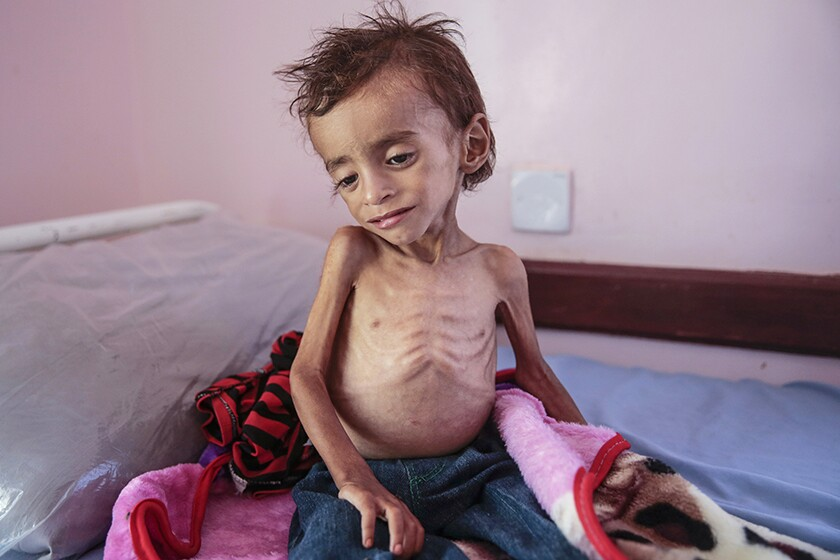A malnourished boy at a hospital in Hajjah, Yemen, in 2018.