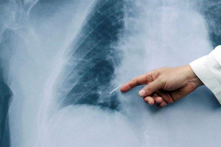Vista de una radiografía de un pulmón. EFE/Archivo