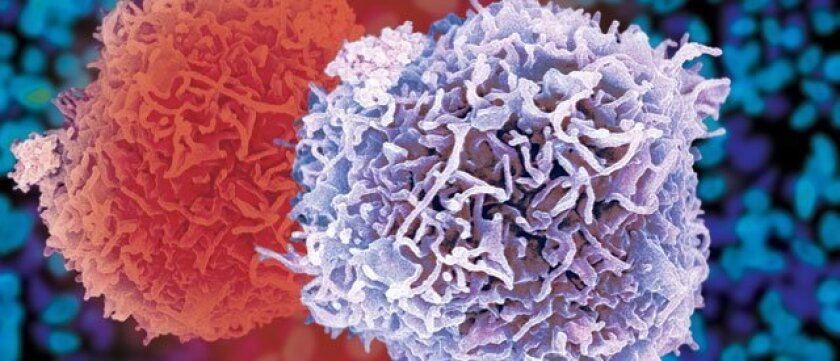 A false-color scanning electron micrograph,depicting  a pair of white blood cells or leukocytes. These cells express interleukin-17, implicated in promoting cancer drug resistance.