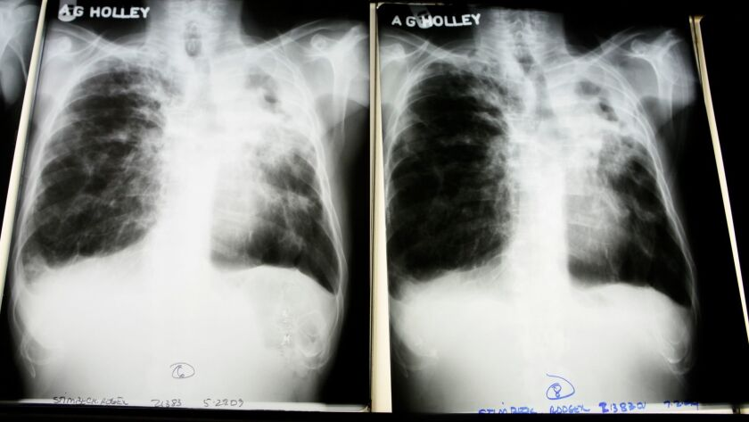 **ADVANCE FOR SUNDAY, DEC. 20** This July 30, 2009 photo shows X-rays from a tuberculosis patient at