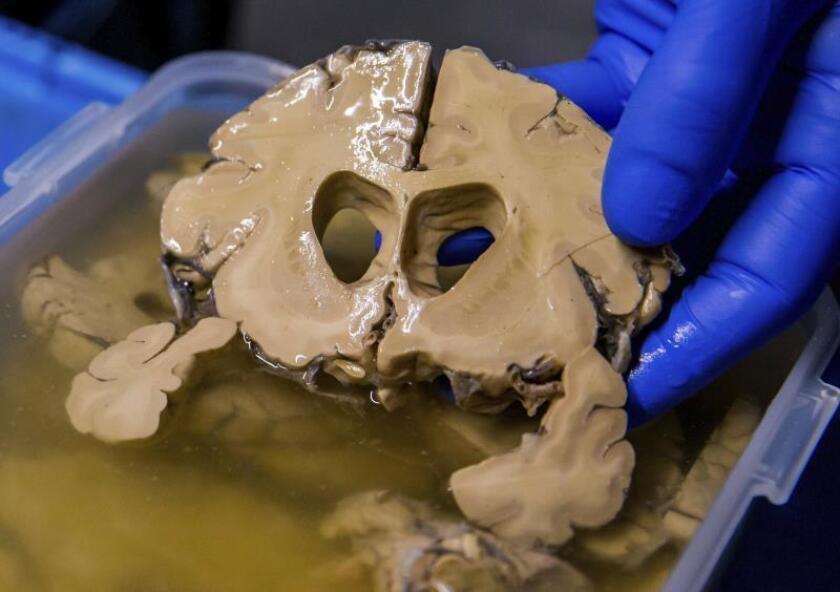 Vista de una parte del cerebro tras una disección. EFE/Stephanie Lecocq/Archivo