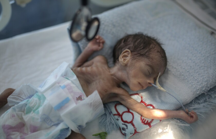 In this Nov. 23, 2019 file photo, a malnourished newborn baby lies in an incubator at Al-Sabeen hospital in Sana, Yemen.