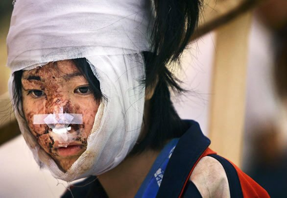 Earthquake survivor
