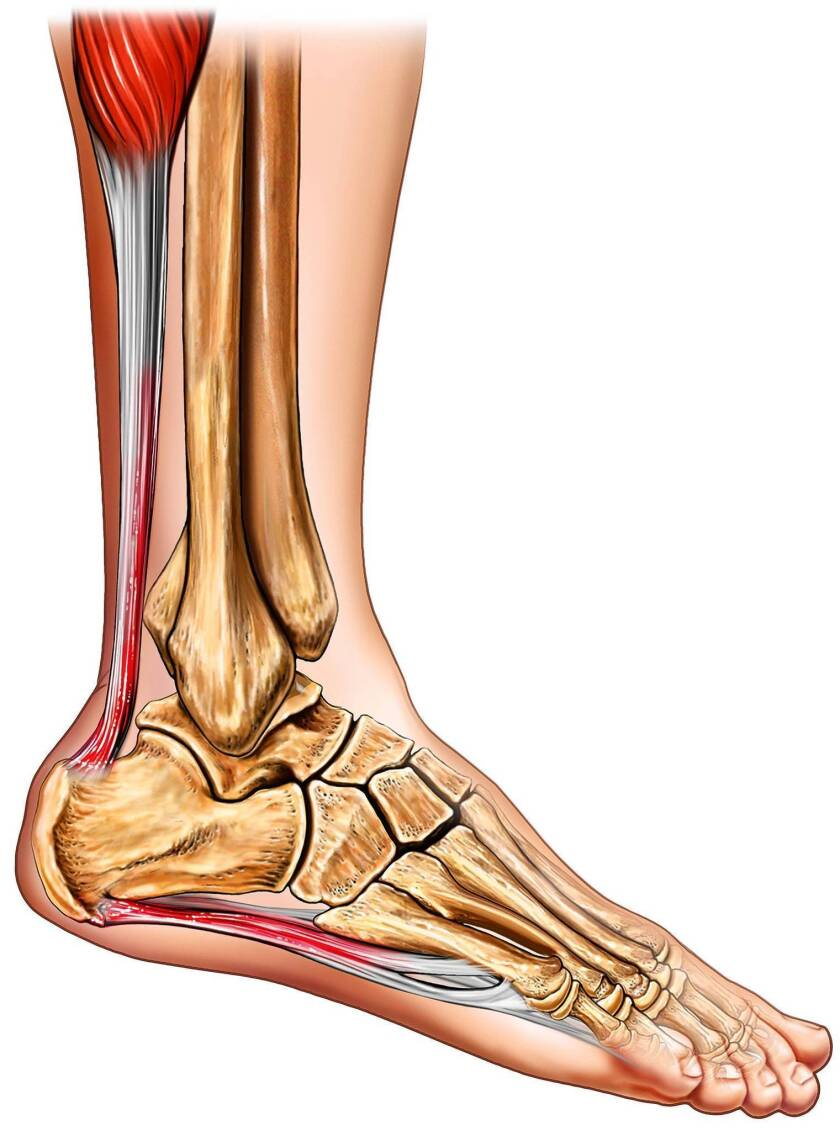 A medical illustration shows a foot with plantar fasciitis, inflammation of the band of tissue that runs from the heel along the bottom of the foot.