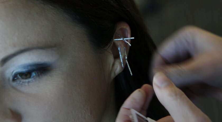 Veteran Stephanie Taborda gets acupuncture at the VA Clinic in Oceanside.