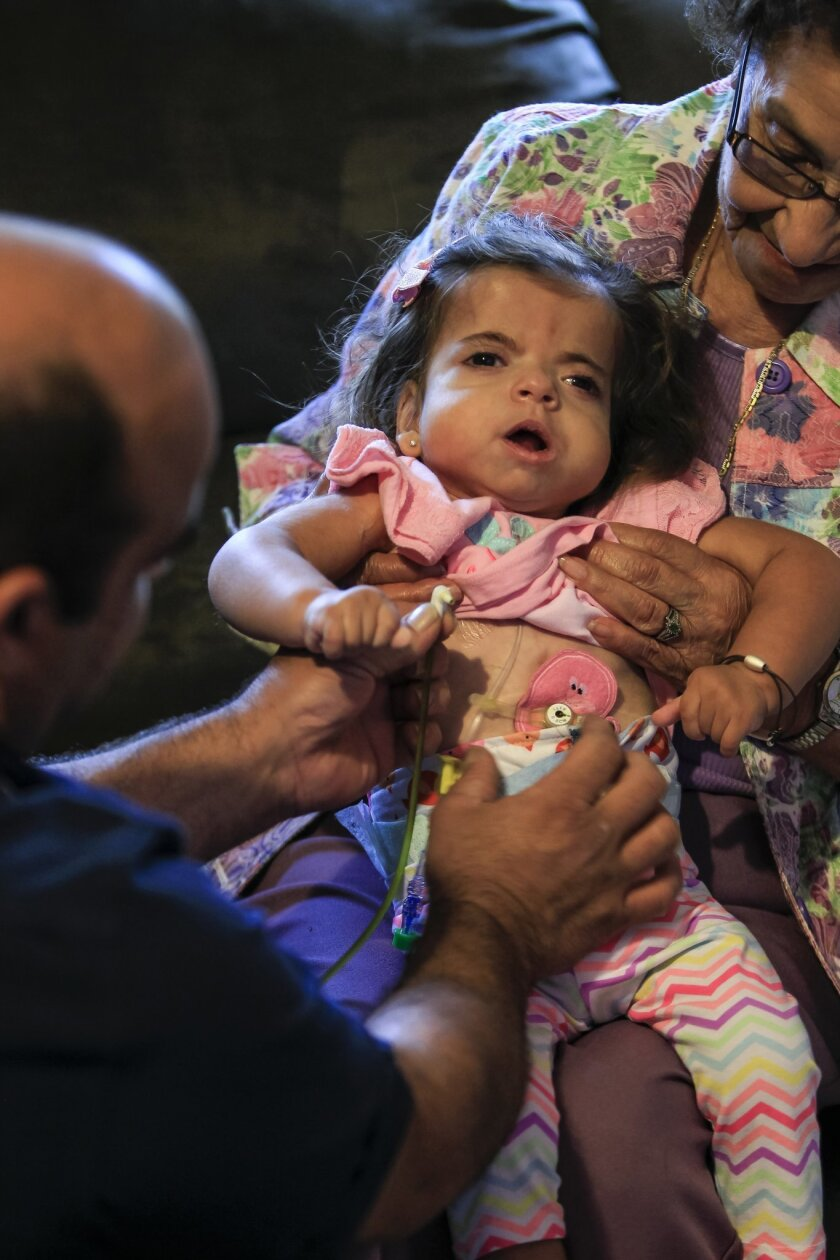 Brian Higuera (left) removes the feeding tube from the stomach of his daughter Sadie Christina Higuera, 1, (will be 2 on May4th) on Friday evening in Ramona, California. Sadie is being held by her great grandmother Candy Barrows.Sadie has a rare genetic disorder and a medical marijuana based subst