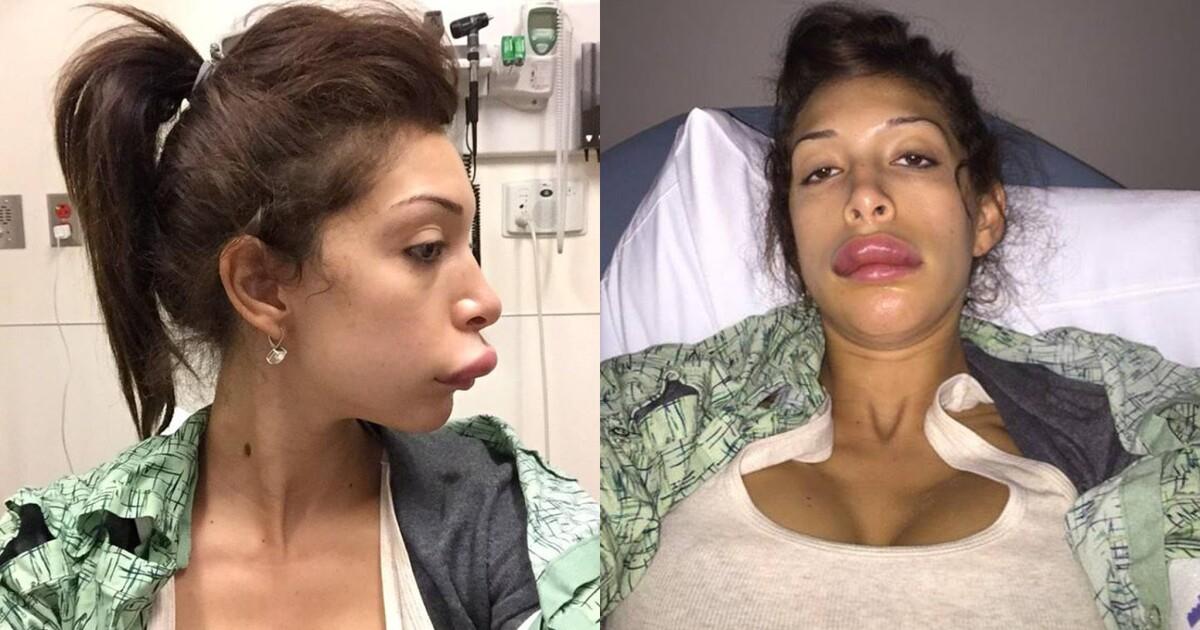 Farrah Abraham Before Plastic Surgery