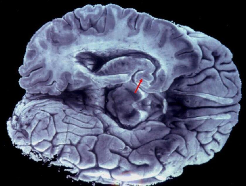 Imagen cedida hoy, miércoles 14 de febrero de 2018, por el Centro de Investigación y de Estudios Avanzados del Instituto Politécnico Nacional (CINVESTAV), que muestra cerebro humano. EFE/CINVESTAV/SOLO USO EDITORIAL