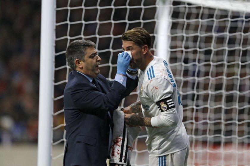 Sergio Ramos sufre fractura del tabique nasal