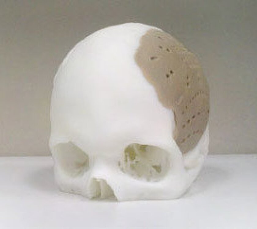 Man has 75% of skull replaced with 3-D printed implant