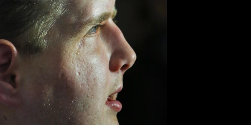 El ex bombero Patrick Hardison, se emociona durante una conferencia de prensa al cumplirse un año de su transplante de rostro. (AP Foto/Bebeto Matthews)
