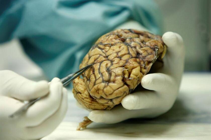 Vista de un médico con parte de un cerebro humano. EFE/Archivo
