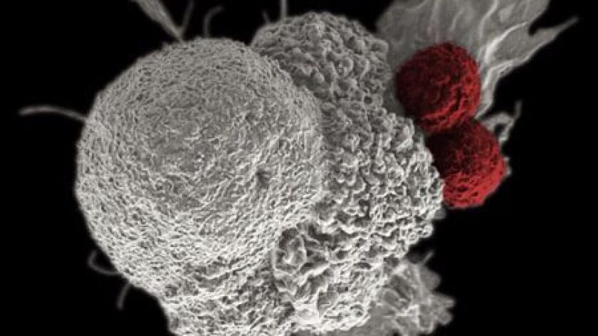 False-color scanning electron micrograph depicts oral squamous cancer cell (white) being attacked by to T cells (red), part of the natural immune response.