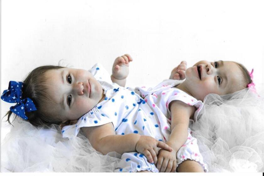 Después de vivir unidas por su abdomen y compartir órganos vitales por más de dos años, Erika y Eva Sandoval lograron sobrevivir hoy a una cirugía de más de 18 horas en las que fueron separadas en el Hospital de Niños Lucile Packard Stanford en Palo Alto, California. EFE/Familia Sandoval/SÓLO USO EDITORIAL/NO VENTAS