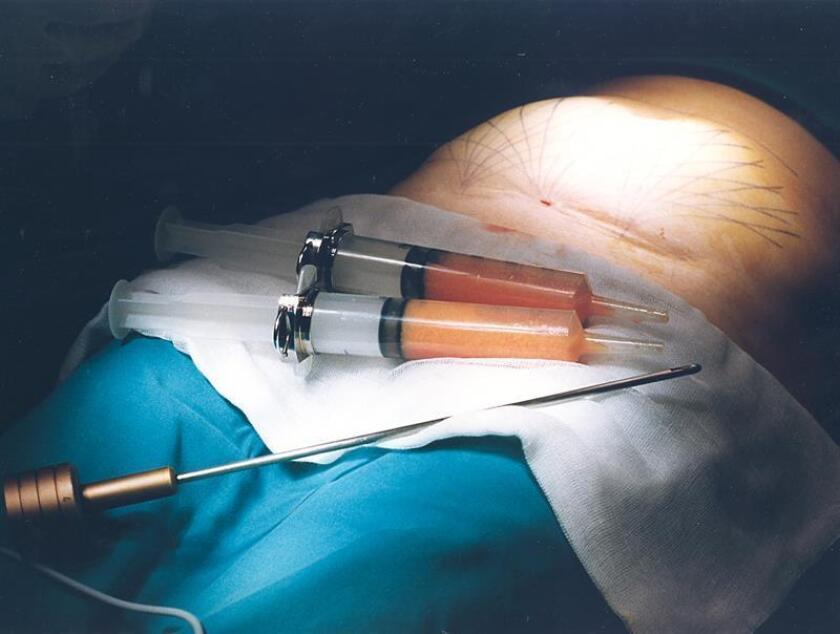 Madrid, noviembre 1996.- Realización de una liposucción de abdomen con anestesia local. EFE/Archivo
