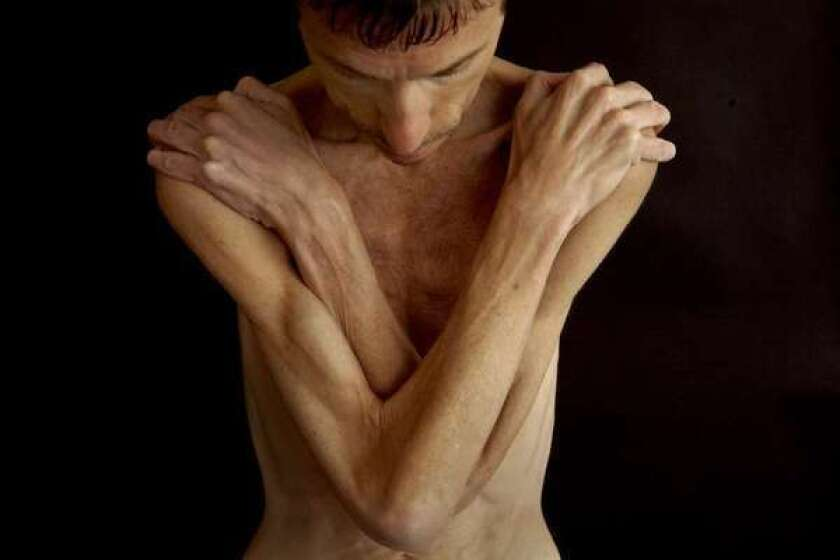 Scientists report finding gene mutations connected to eating disorders